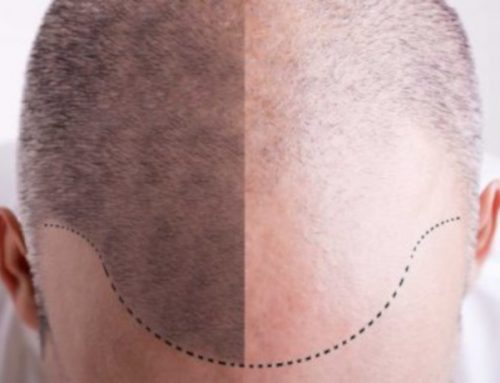 Is Scalp Micropigmentation Right For Me?